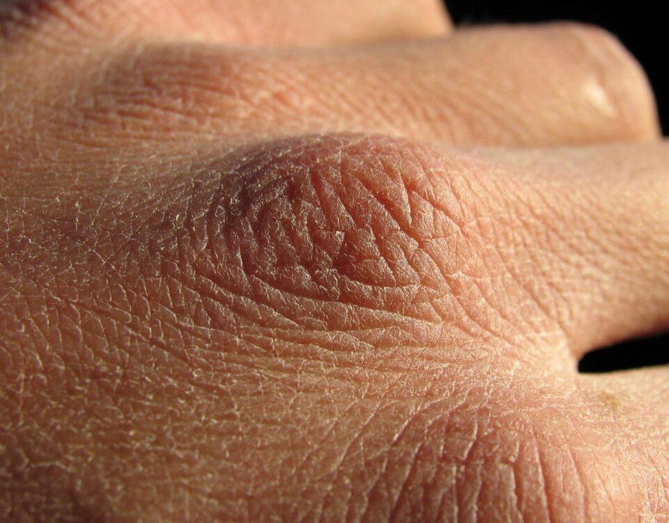 dry-skin
